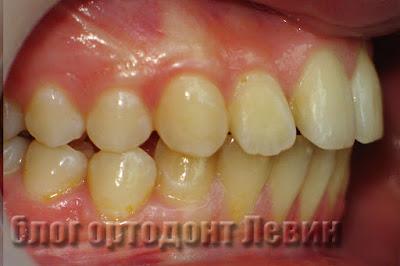 Неправильный прикус после ортодонтического лечения