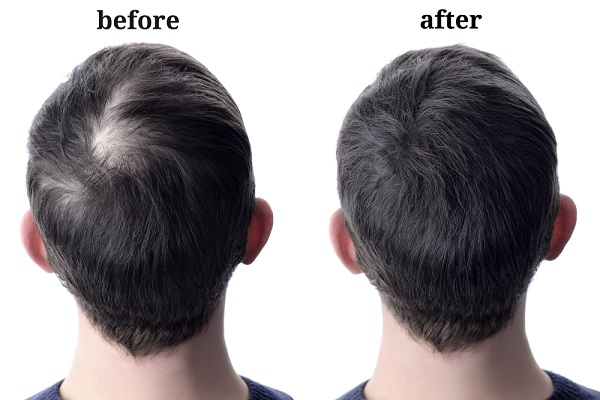 Take these 3 Simple Steps to Save Your Hair from Baldness