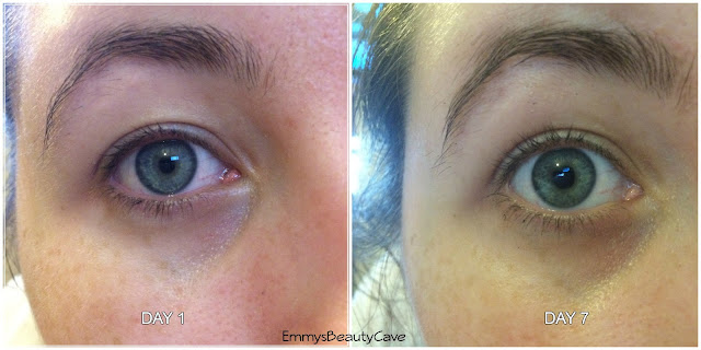 Quickmax EyeLash Growth Enhancer Before and After