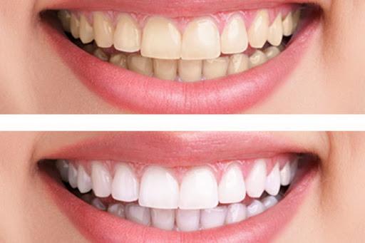 Préparer un dentifrice qui blanchit les dents, tonifie la gencive et rafraîchit l'haleine