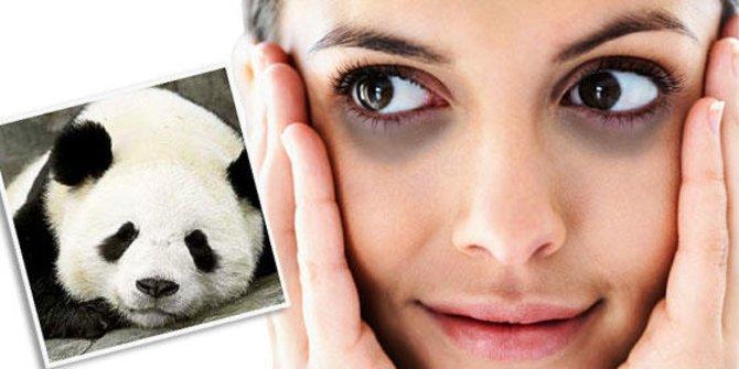 Cara Menghilangkan Mata Panda Secara Alami Dan Cepat