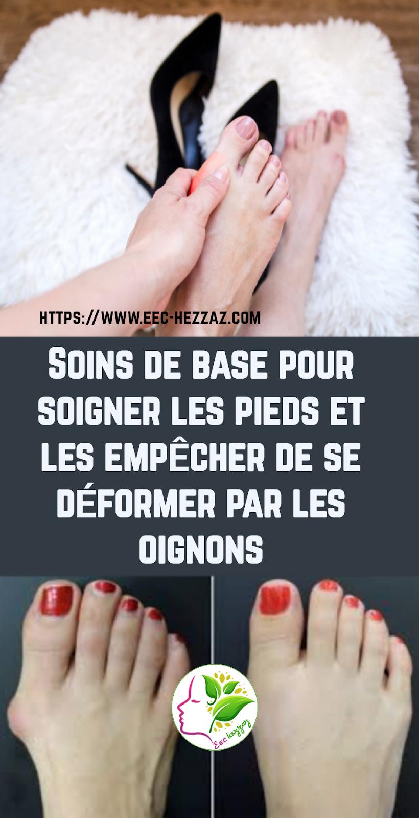 Soins de base pour soigner les pieds et les empêcher de se déformer par les oignons