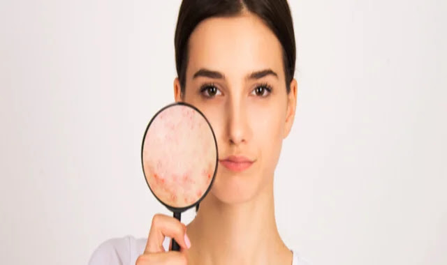 what are the causes of weight gain,how to get rid of acne,how to get clear skin,how to get rid of acne naturally,face serum for oily skin,best serums for oily skin,serum for oily skin,how to get rid of pimples,men's skin problems and solutions,how to treat painful penis,how to cure acne,are genetics fixed?,what causes baldness,genes,how to get good skin,what kid of exfoliator should i use,how to use serum on face,whe you are getting older,how to use serum,getting rid of acne