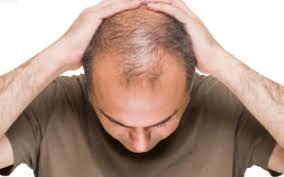 فقط في أسبوع واحد يمكنك استعادة الشعر المفقود
