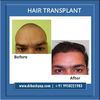 hair transplant in south delhi, hair transplant in delhi