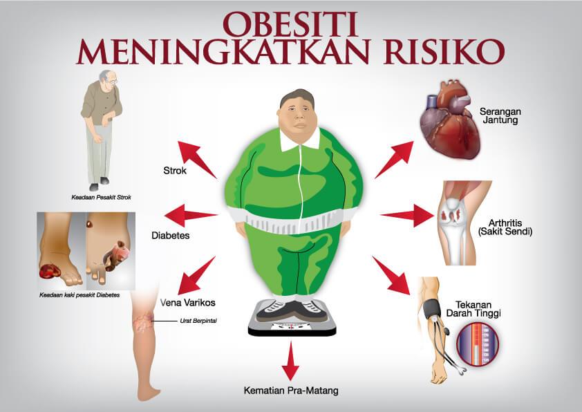 Kanser Obesiti