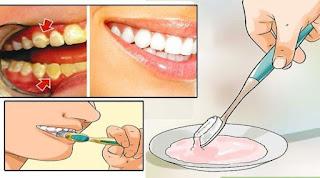 4 أطعمة لإزالة جير الأسنان ... مذهل !!!