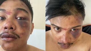Dosennya Babak Belur oleh Polisi, UMI Tempuh Jalur Hukum