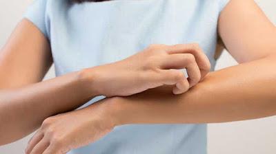 Waspadai! Kulit Gatal Indikasikan 5 Penyakit Berbahaya Yang Menakutkan
