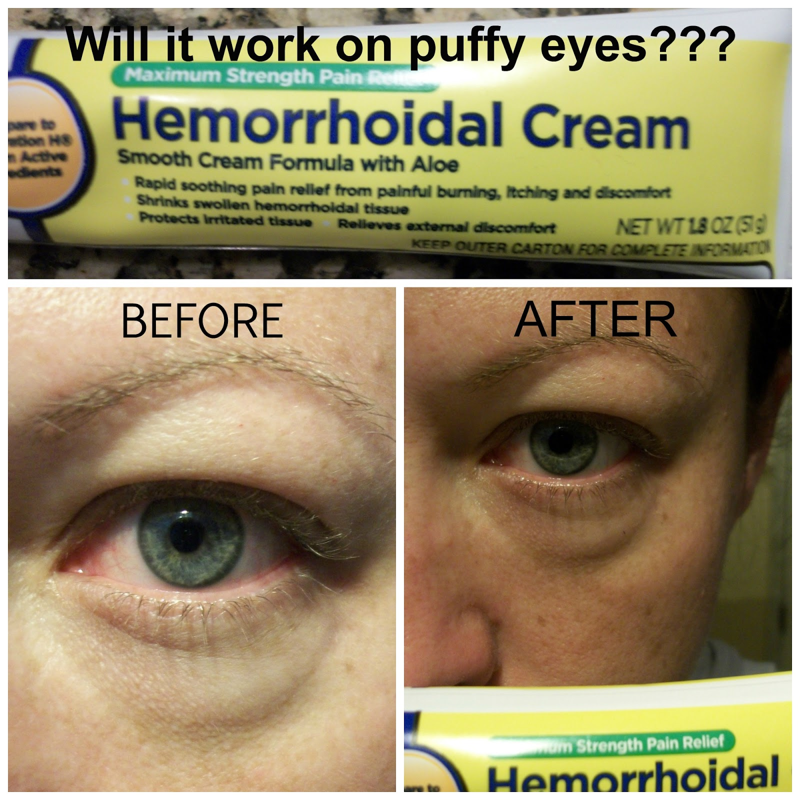 Hemorrhoid cream for eyes review