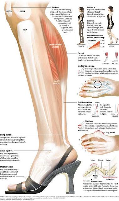 Bahaya Sandal Sepatu High Heels,high heel efect, bahaya sepatu sandal tinggi,efek samping sepatu sandal tinggi