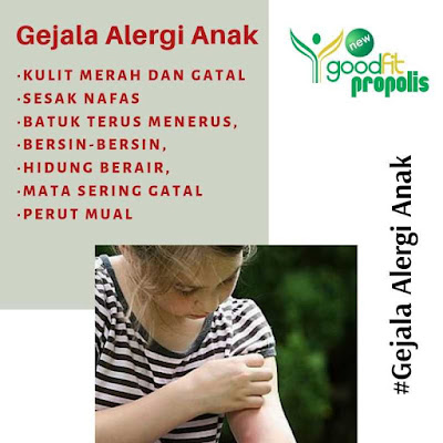 Gejala Alergi Anak