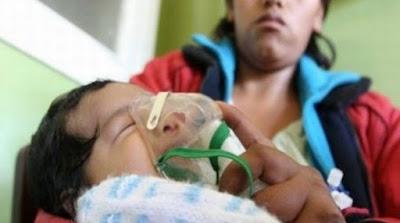 Infección respiratoria grave niños