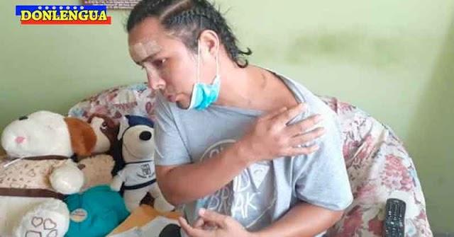 EN PERÚ | Su mejor amigo de la infancia lo desfiguró con una botella rota