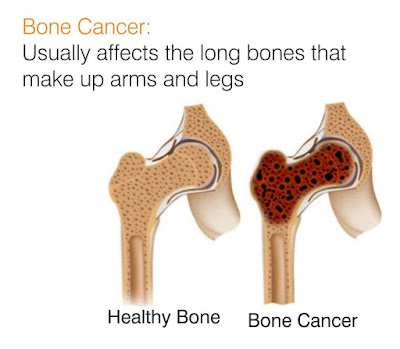 http://doctorcancer.org/bone-cancer.html