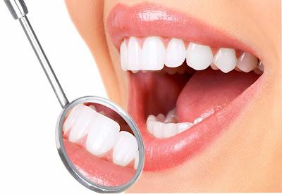 Perawatan Gigi Bersih, Putih Dan Sehat