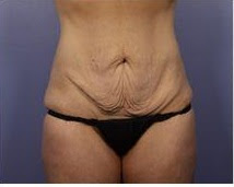 loose-skin-after-weightloss