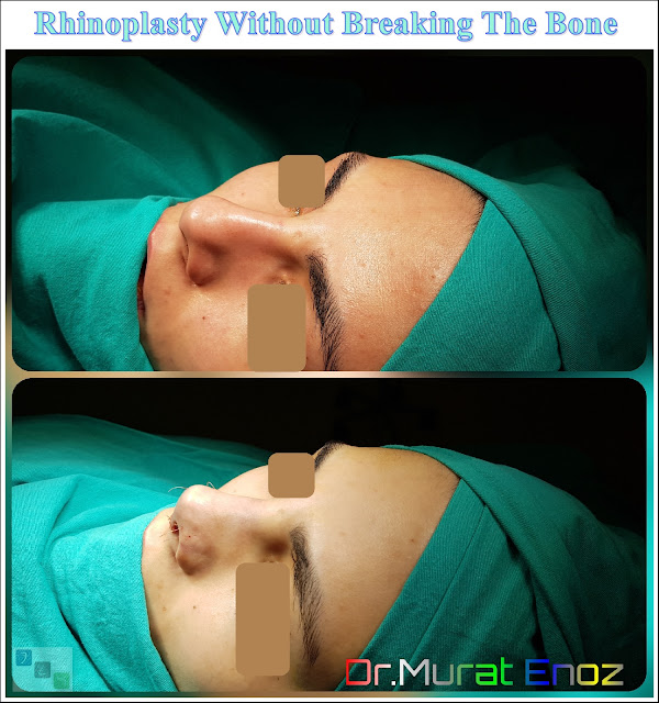 Rhinoplasty Operation Without Breaking The Nasal Bone
