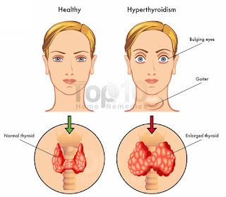 Obat Hipertiroid Herbal
