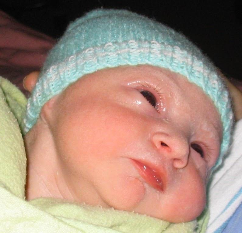 8479b83c560f7 La conjonctivite chez le nouveau-né est relativement courante