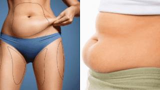 graisse du ventre