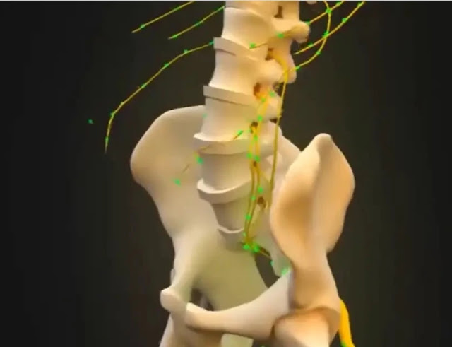 lower back pain - Spinal Cord Stimulation