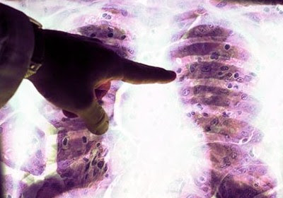 Eplain the Type of Mesothelioma in Short Article