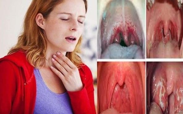 penyakit radang tenggorokan
