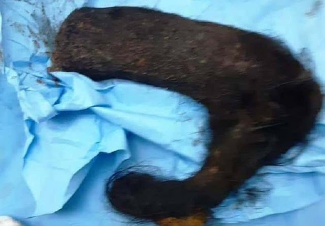 2 Kg Hair Removed from Young Woman's Stomach in Taif