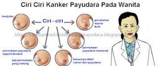 Tips Cara Mengobati Kanker Payudara Gejala Stadium Awal