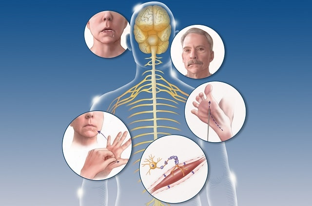 clinical health programs amyotrophic lateral sclerosis treatment als symptoms