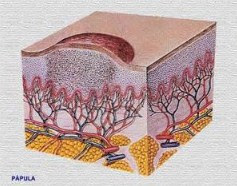 testimoni daun binahong untuk jerawat,  daun binahong untuk jerawat review,  efek samping daun binahong untuk jerawat,  manfaat binahong untuk kulit wajah,  cara memutihkan wajah dengan daun binahong,  daun binahong untuk flek hitam,