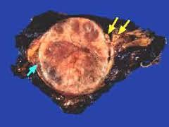 adrenal-gland-tumor-image