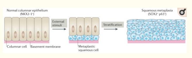 Metaplazi Nedir? İntestinal Metaplazi Nedir?