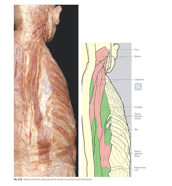 Splenius and erector spinae exposed by removal of overlying muscles and fasciae.