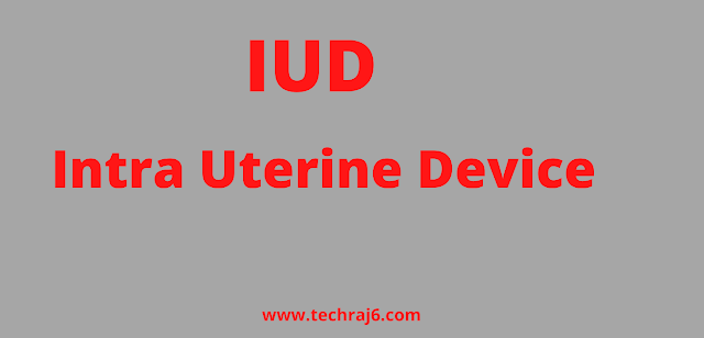 IUD full form, What is the full form of IUD