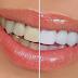 Bahan Alami Memutihkan Gigi Dalam Seminggu Yang Aman