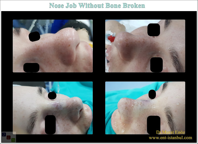 Rhinoplasty Operation Without Breaking The Nasal Bone, Aesthetic nose surgery without breaking the nasal bone, Rhinoplasty without bone breaking in Istanbul,Nose Job Without Toching The Bone in Turkey,Nose aesthetic surgery without breaking bone,