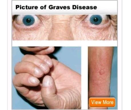Understanding Graves' Disease, Early Warnings And Health Risks