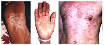 Cara Cepat Mengetahui Penyakit Sipilis Pada Pria
