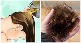 Rambut Rontok Sehat Kembali Hanya Dengan Bumbu Dapur Ini, Simak Caranya!