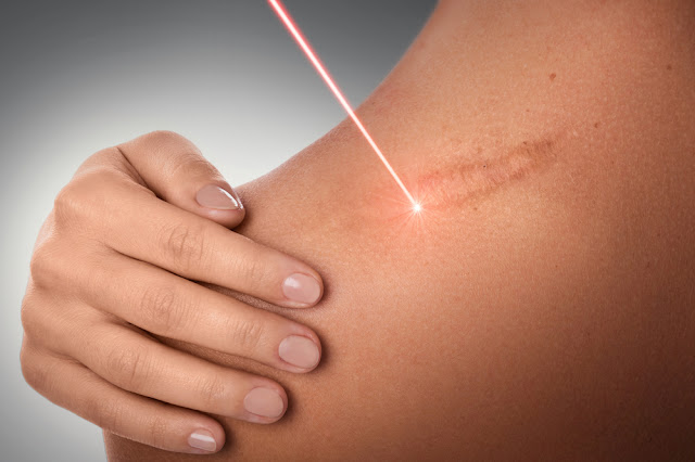 Laser Technologies used in Scar Treatment