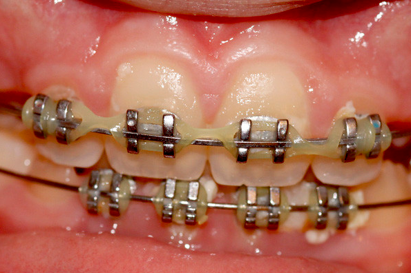 cost of teeth braces in Thailand
