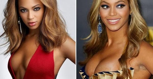 Beyonce breast augmentation