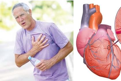 Rumah Sakit Sari Asih: Inilah Beberapa Hal yang Mampu Meningkatkan Resiko Penyakit Jantung Koroner
