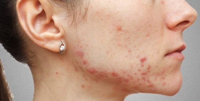 For what reason does a pimple rise in a similar place on the face?