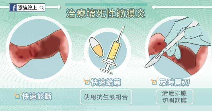 小傷口別輕忽 – 壞死性筋膜炎(懶人包) - 照護線上