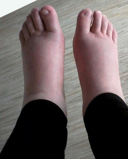Soulager les pieds gonflés en 5 mins avec de l'eau chaude et le sel