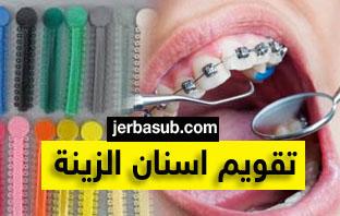 تقويم اسنان زينه في الصيدليه