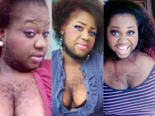 Checkout New Photos Of 'Nigeria's Hairiest Lady', Nonyerem Okafor